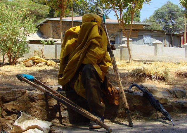 Zdjęcia: Gandor, Gandor, trędowty, ETIOPIA