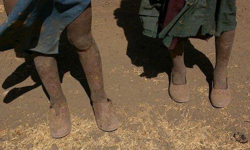 Zdjęcie ETIOPIA / Północna - środkowa Etiopia / Siemen Mountains / Dziwna ale prawdziwa perspektywa