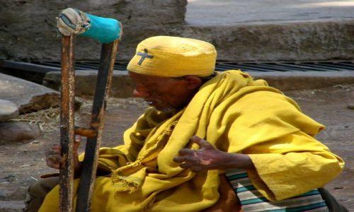 Zdjęcie ETIOPIA / Gandor / Gandor / Trędowaty