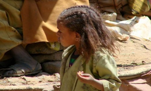 Zdjęcie ETIOPIA / Debork / Debork / Ale  noga