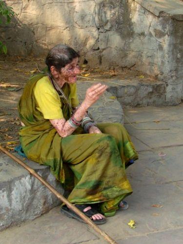 Zdjęcia: Delhi, bielactwo, INDIE