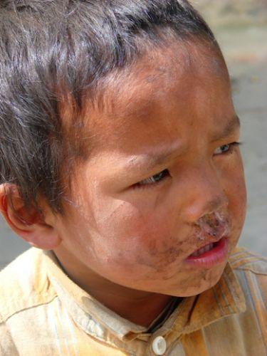 Zdj�cia: Lete, zagilone dziecie, NEPAL