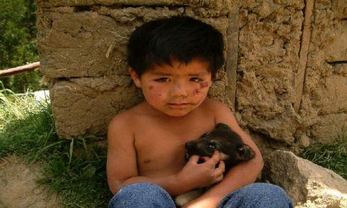 Zdjecie PERU / Andy, Kordyliera Czarna / Okolice Huaraz / Po kraksie rowerowej?