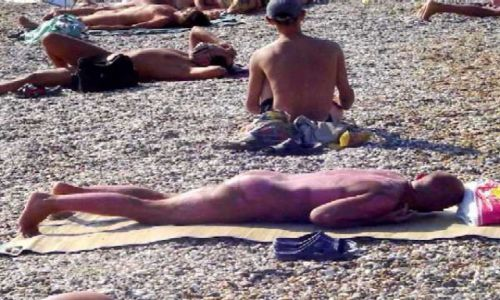 Zdjecie UKRAINA / Krym / Eupatoria / Efekty opalania bez kremu na nagiej plaży w Eupatorii